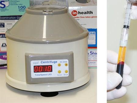Preparing blood for PRP Treatment